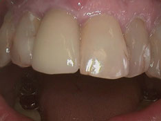 Front_Tooth_Crown_Over_Implant_2_sm.jpg